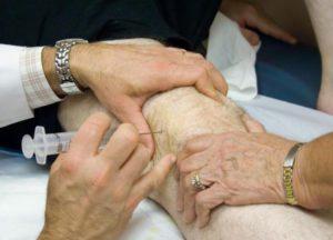 Укол в колено при артрозе