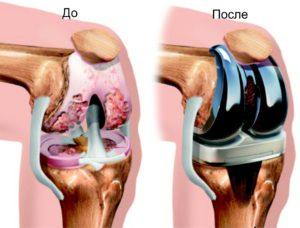 Энопротезирование коленного сустава