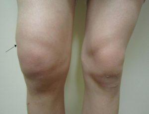 Сильный отек колена