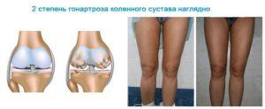 2-ая степень гонартроза коленного сустава