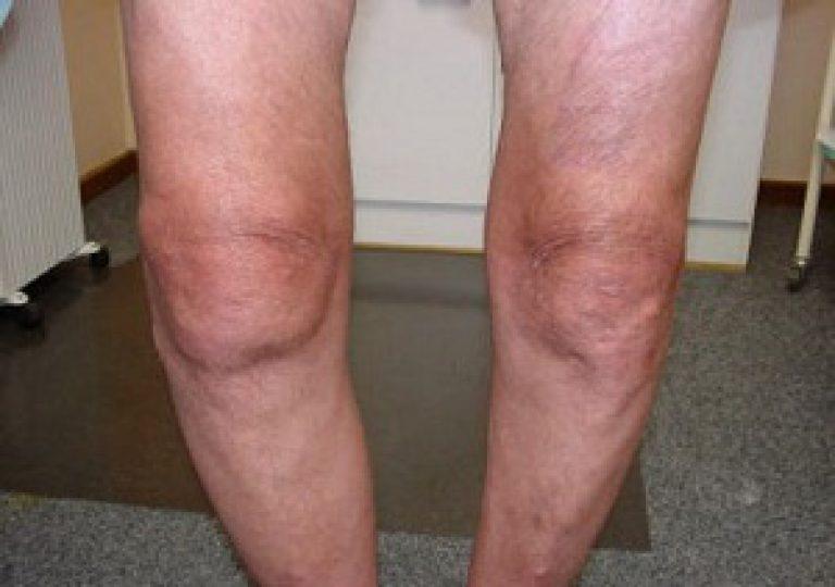 Артроз коленного сустава (гонартроз): код по МКБ-10, двусторонние ...