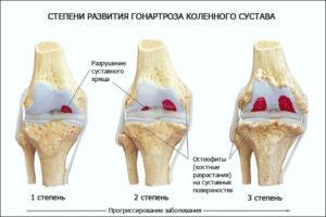 3 степени гонартроза коленного сустава