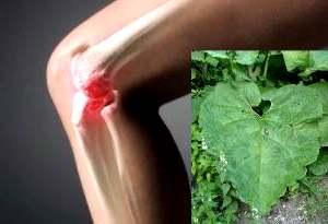 Лечение артроза колена по бубновскому