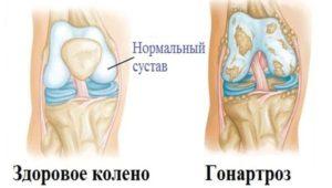 Разрушение сустава при гонартрозе