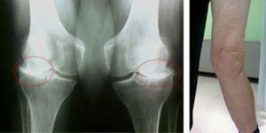Ревматоидный артрит колена
