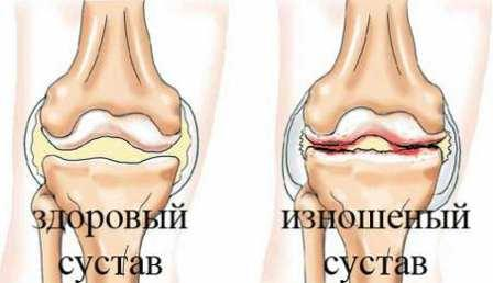 Гонартроз 1 степени коленного сустава лечение