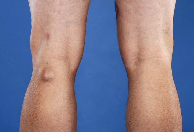 Лечение кисты Беккера под коленом причины возникновения и методы устранения