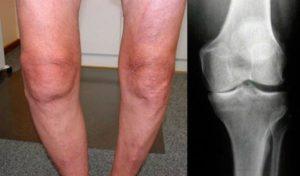 Увеличение колена при гонартрозе
