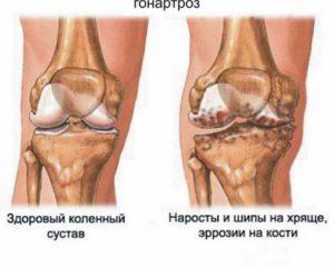 Гонартроз коленного суствав