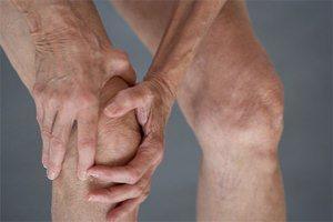 Гонартроз правого коленного сустава