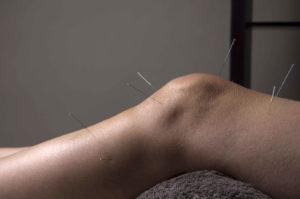 Акупунктура коленного сустава