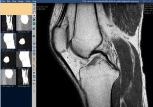 Денситометрия коленных суставов