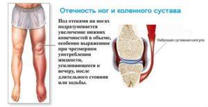 Сильный отек ноги при артрозе 2-ой степени