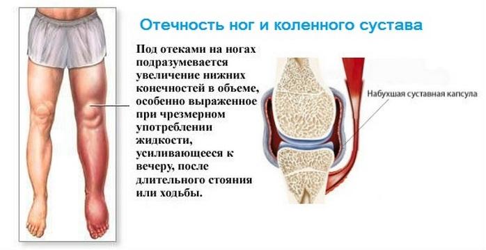 Как снять отек при артрозе коленного сустава