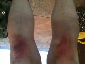 Ожог колен из-за неправильного накладывания горячих компрессов