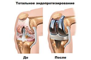 Эндопротезировани коленного сустава