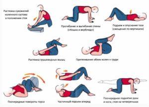 Изображение - Укрепление связок и сухожилий коленного сустава lfk-pri-vospalenii-mezhpozvonochnyh-diskov-300x216