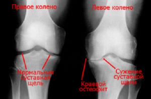 Рентген коленного сустава для выявления патологии