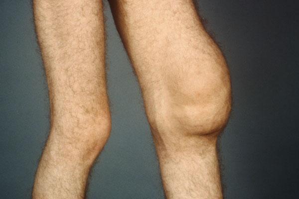 Бурсит синовит коленного сустава прибор эос лечения суставов цена