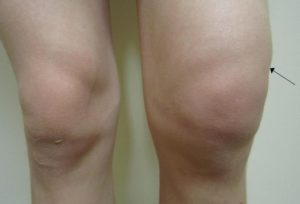 Отек коленного сустава при бурсите