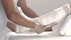 Гипс для обездвиживания ноги