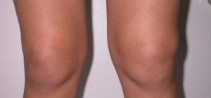 Опухоль при гемартрозе колена