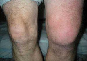 Отечность коленного сустава