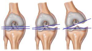 Повреждение коленного мениска