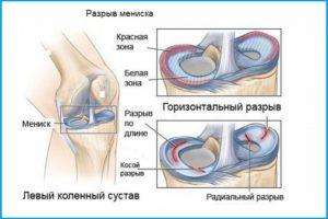 Повреждения внутреннего мениска