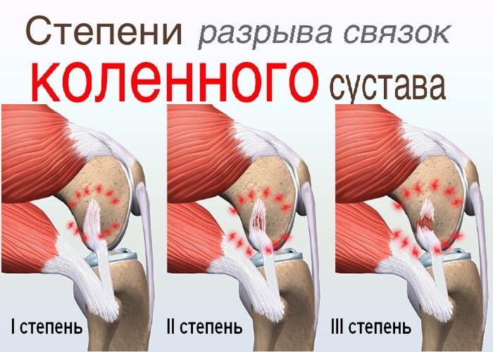 Повреждение связок коленного сустава: код по МКБ-10, признаким ...