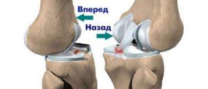 После операции сшивания связок коленного сустава