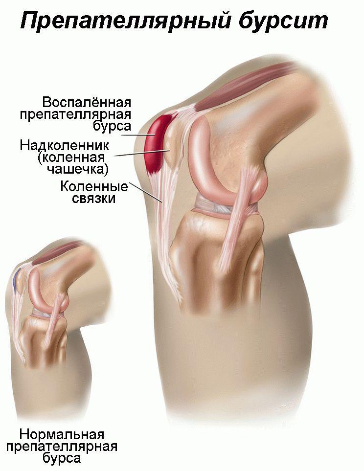 Бурсит коленного сустава чем и как лечить