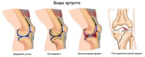Мкб 10 артрит коленного сустава