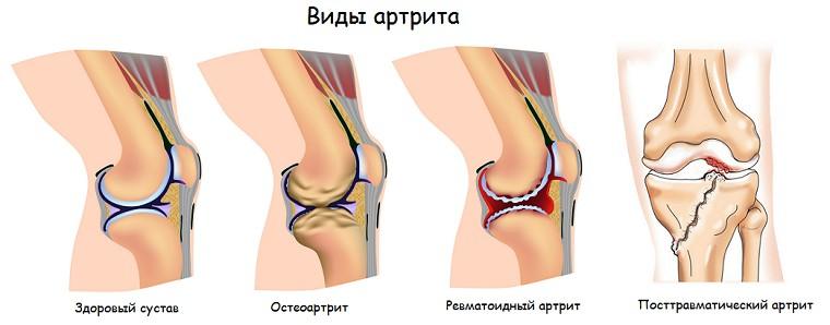 Артрит коленного сустава: код по МКБ-10, лечение, острый ...