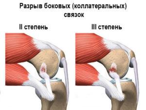 Разрыв боковых связок колена