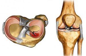 Разрыв коленного мениска