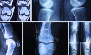 Рентгенографическое исследование колена