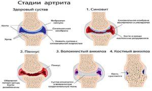 Артрит коленного сустава мкб 10