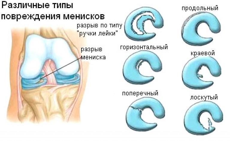 Повреждение мениска коленного сустава: симптомы разрывов и ...