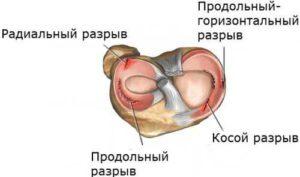 Типы разрывов мениска коленного сустава
