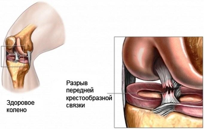 мкб 10 растяжение связок плечевого сустава