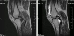 МРТ для диагностирования патологии