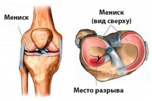 Мениск коленного сустава - повреждения и разрывы