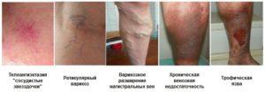 Тромбоз подколенной вены: симптомы, диагностика и лечение