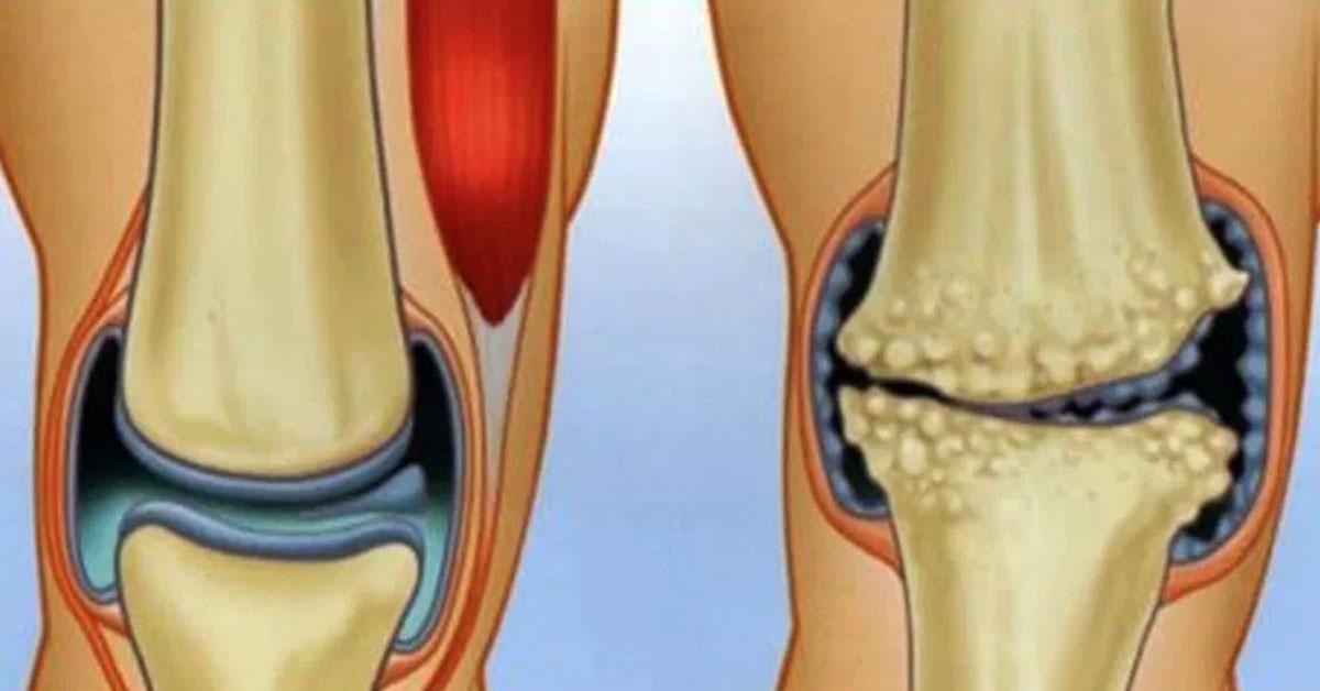 Асептический некроз коленного сустава - причины развития и лечение
