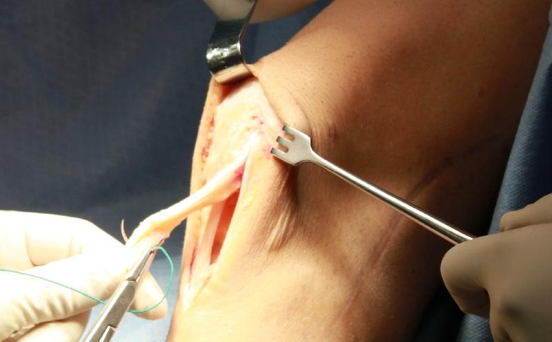 Подвывих коленной чашечки с разрывом связок диагностика лечение и реабилитация