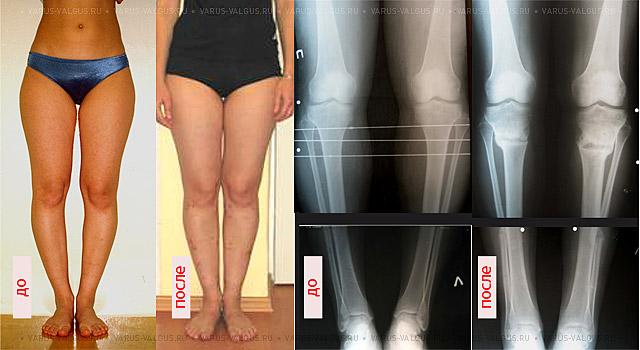 кривая нога после перелома