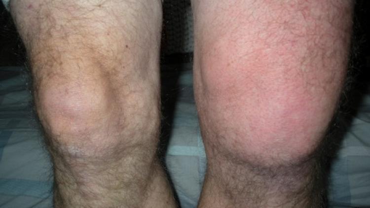 Выпот коленного сустава лечение стоимость операции по эндопротезированию коленного сустава дельта