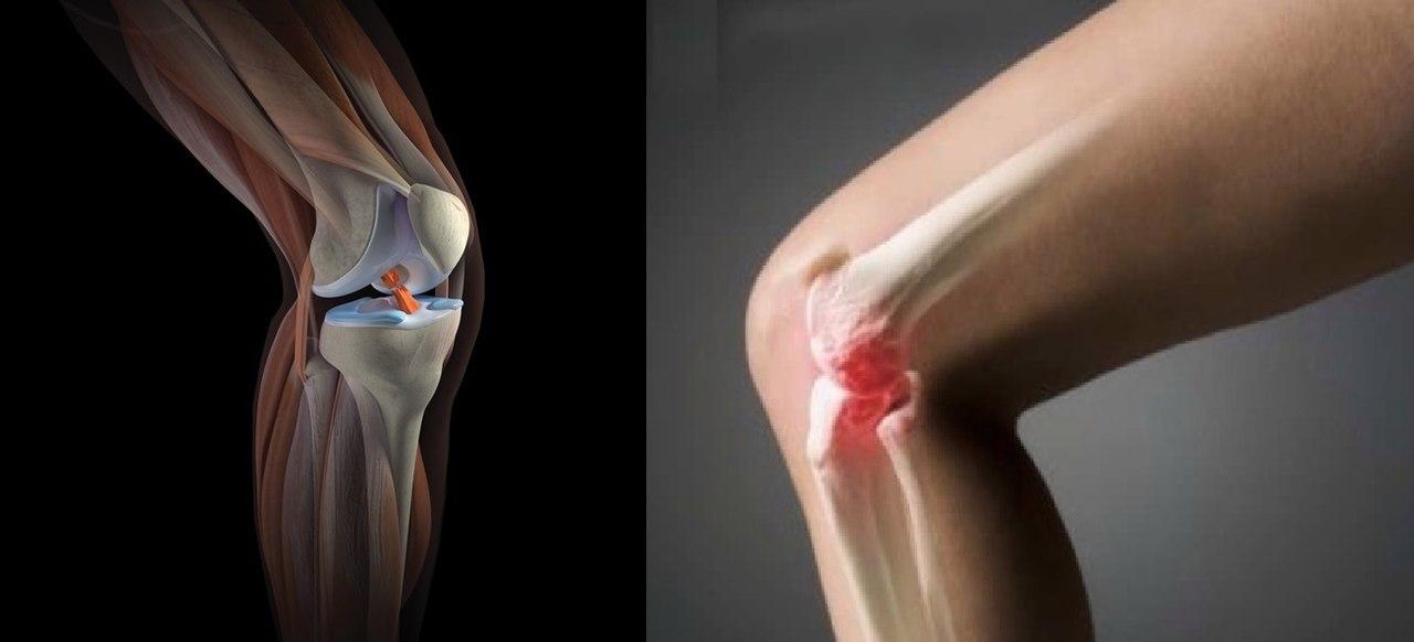 Повреждение боковой связки коленного сустава: лечение болей, разрывов и растяжений