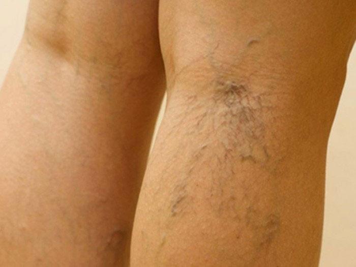 Болит под коленом сзади варикоз